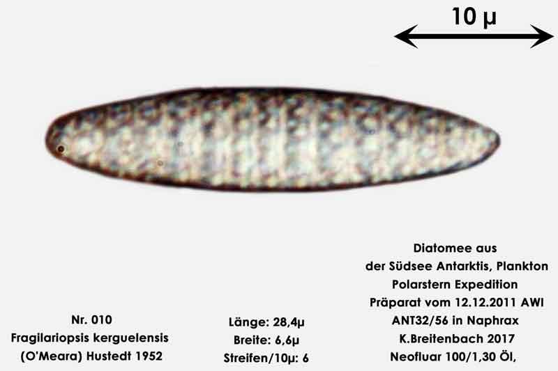 Bild 4 Art: Fragilariopsis kerguelensis (O'Meara) Hustedt 1952