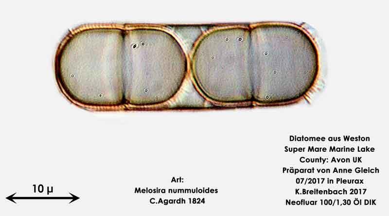 Bild 29 Diatomeen aus Weston Super Mare, UK Art: Melosira nummuloides C.Agardh 1824