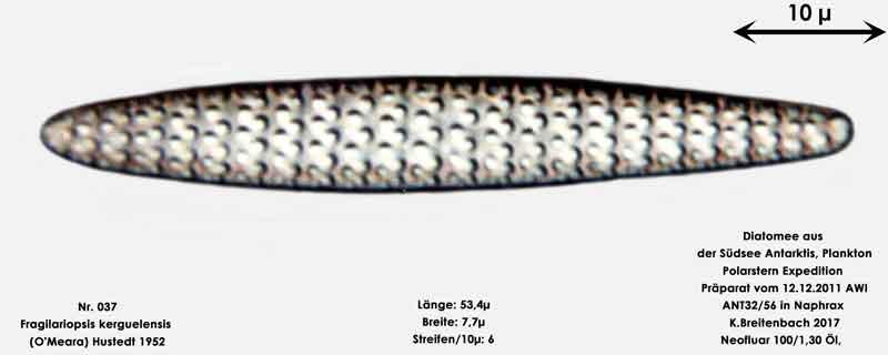 Bild 11 Art: Fragilariopsis kerguelensis (O'Meara) Hustedt 1952