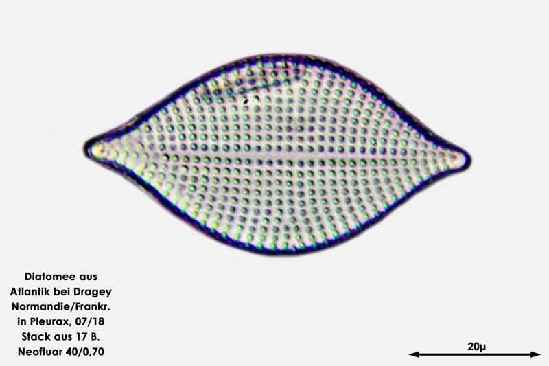 Bild 57 Diatomee aus dem Atlantik bei Draghey de Monton (Normandie). Art: Rhaphoneis amphiceros (Ehrenberg) Ehrenberg 1844