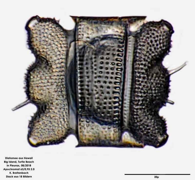 Bild 50 Diatomee aus Hawaii, Big Island, Turtle Beach. Art: Odontella aurita (Lyngbye) C.Agardh 1832