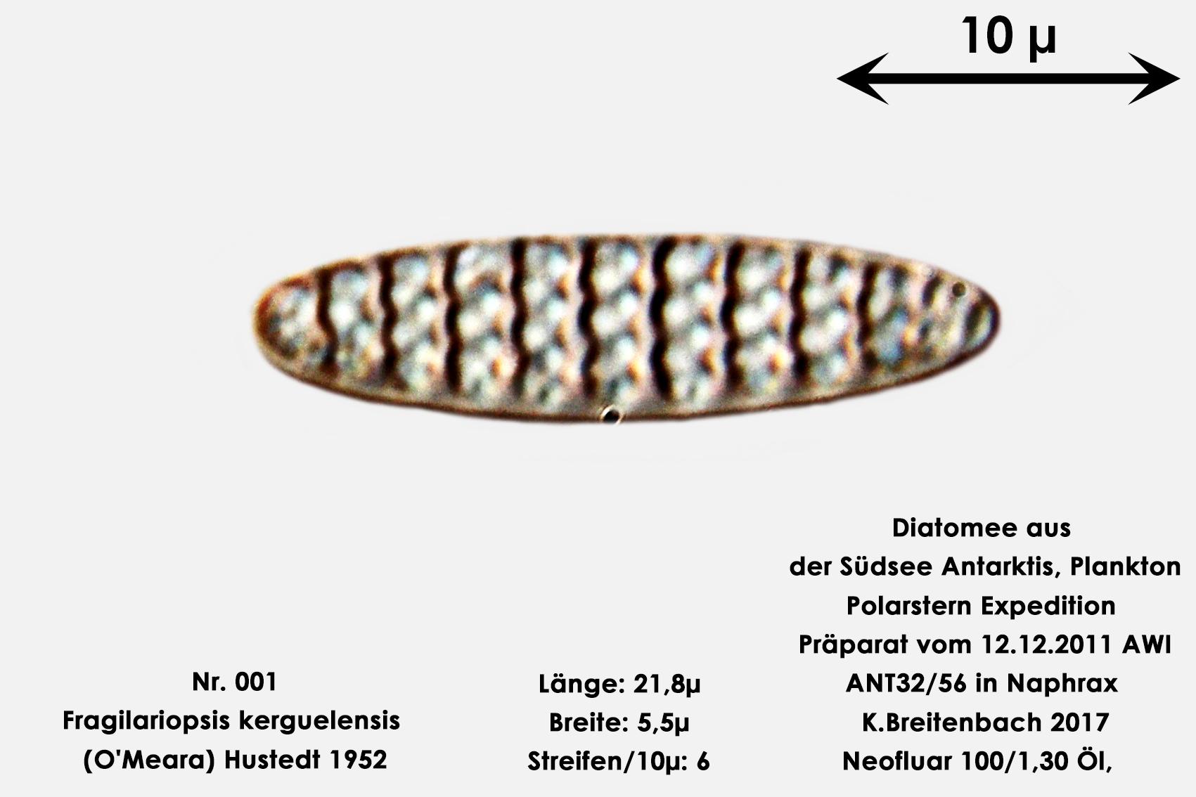 Bild 2 Art: Fragilariopsis kerguelensis (O'Meara) Hustedt 1952