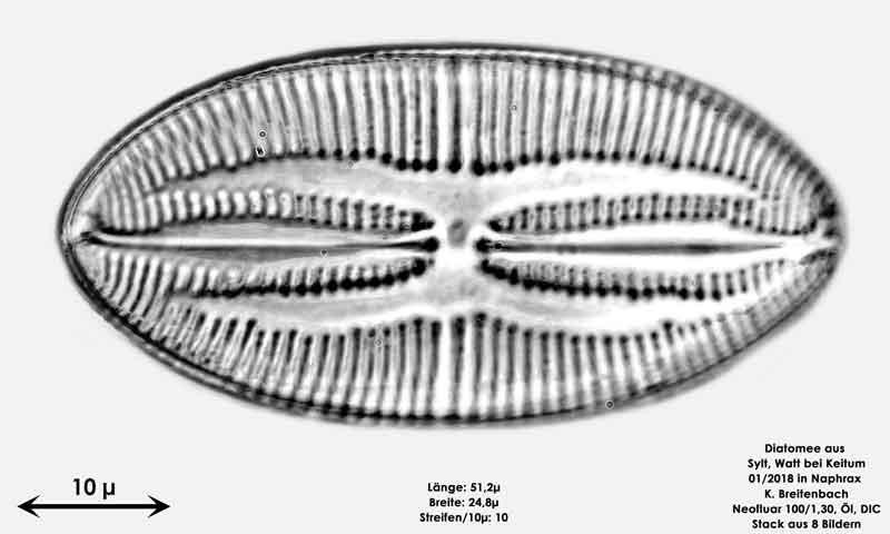 Bild 33 Diatomee aus Sylt/Keitum Watt, Art: Lyrella atlantica (Schmidt), Crawford & Mann 1990
