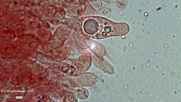 Bild 13 Semmelstoppelpilz (Hydnum repandum) Marginalbasidien und Basidie