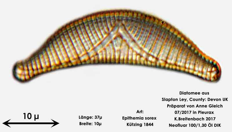 Bild 20 Diatomeen aus Slapton Ley, Devon UK; Art: Epithemia sorex Kützing 1844
