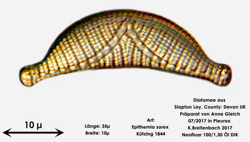 Bild 22 Diatomeen aus Slapton Ley, Devon UK; Art: Epithemia sorex Kützing 1844