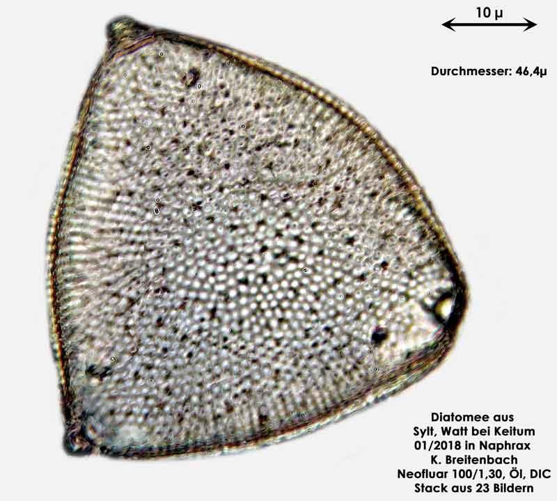 Bild 21 Diatomee aus Sylt/Keitum Watt, Art: Biddulphia rhombus var. trigona Cleve ex Van Heurck 1882