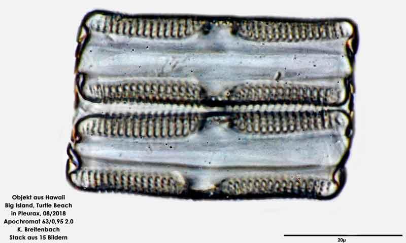 Bild 113 Diatomee aus Hawaii, Big Island, Turtle Beach. Gattung: konnte von mir nicht bestimmt werden