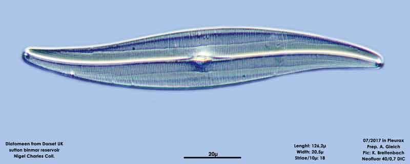 Bild 16 Diatomeen aus Dorset UK, Süßwasser. Art: Gyrosigma spevcerii (Quekett) Griffith & Henfrey 1856