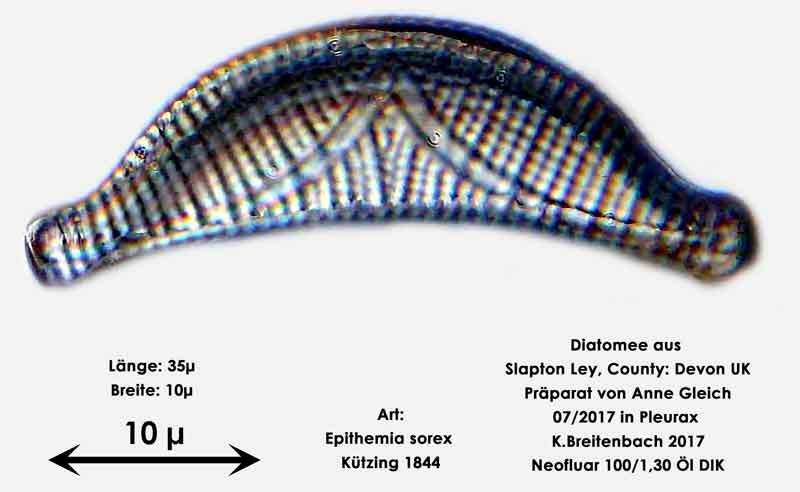 Bild 18 Diatomeen aus Slapton Ley, Devon UK; Art: Epithemia sorex Kützing 1844