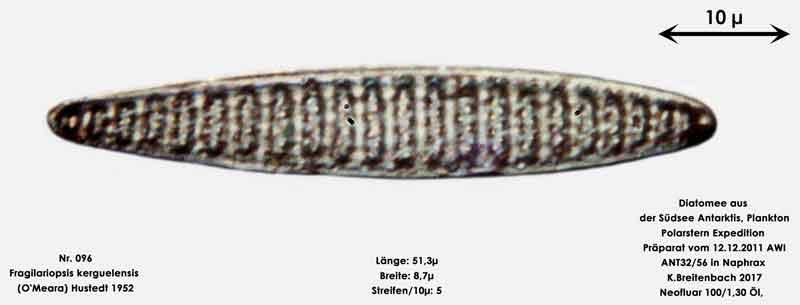 Bild 13 Art: Fragilariopsis kerguelensis (O'Meara) Hustedt 1952
