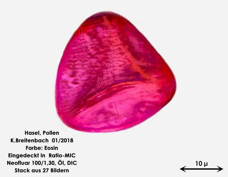 Bild 7 Hasel-Pollen Eosin gefärbt in Ratio-MIC 1000 fach vergrößert