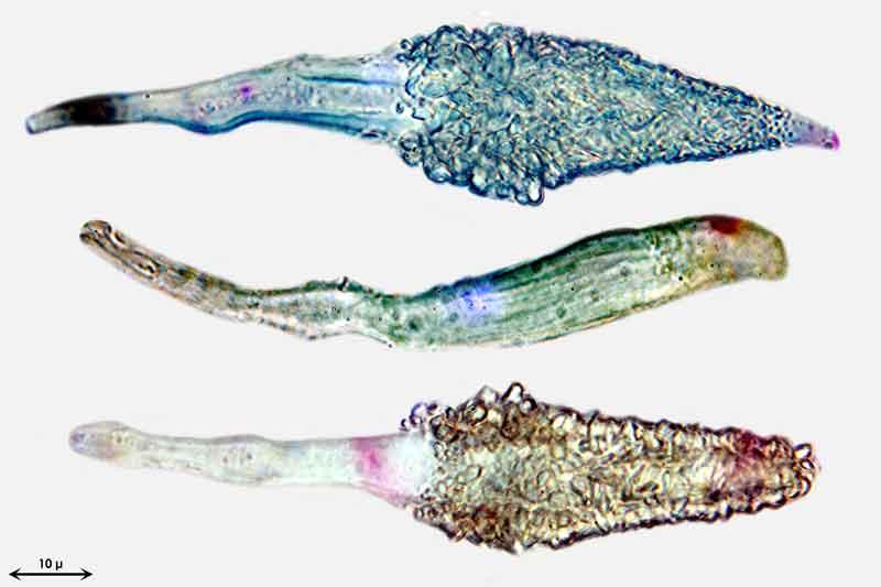 Bild 5 Phlebiopsis gigantea, Zystiden mit Kristallspitzen, eine Zystide nicht voll entwickelt