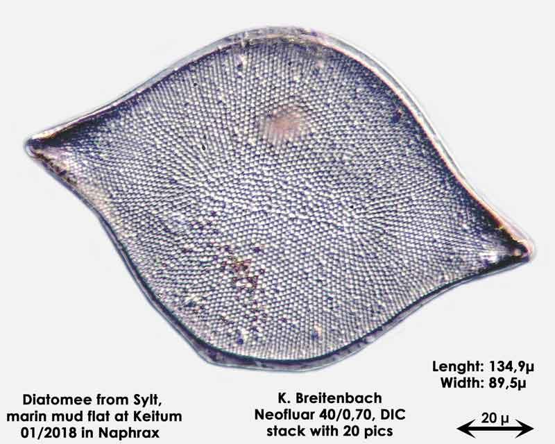 Bild 17a Diatomee aus Sylt/Keitum Watt, Art: Biddulphia rhombus (Ehrenberg) Smith 1854