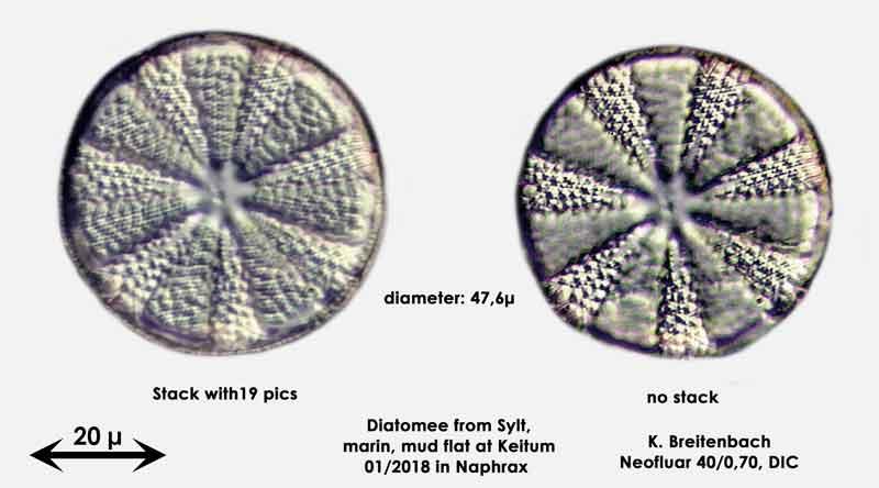Bild 5 Diatomee aus Sylt/Keitum Watt, Art: Actinoptychus splendens (Shadbolt) Ralfs