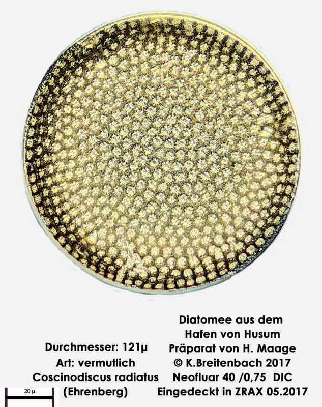 Bild 8 Diatomee aus dem Hafen von Husum Art Coscinodiscus radiatus Ehrenberg 1840