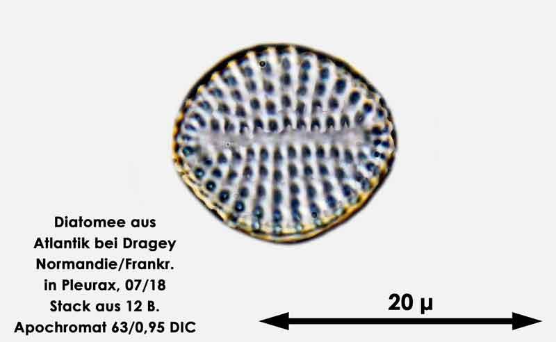 Bild 62 Diatomee aus dem Atlantik bei Draghey de Monton (Normandie). Art: Rhaphoneis amphiceros (Ehrenberg) Ehrenberg 1844