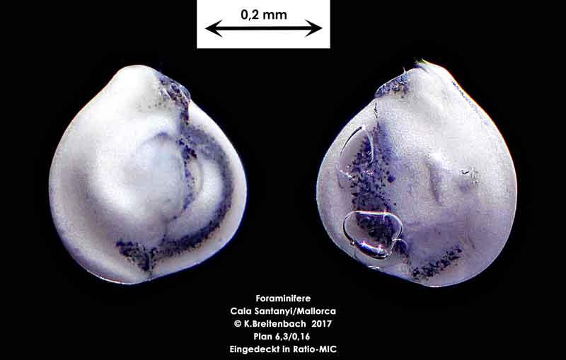Bild 19 Foraminifere aus Mallorca Cala Santanyi, Art: Quinqueloculina sp.