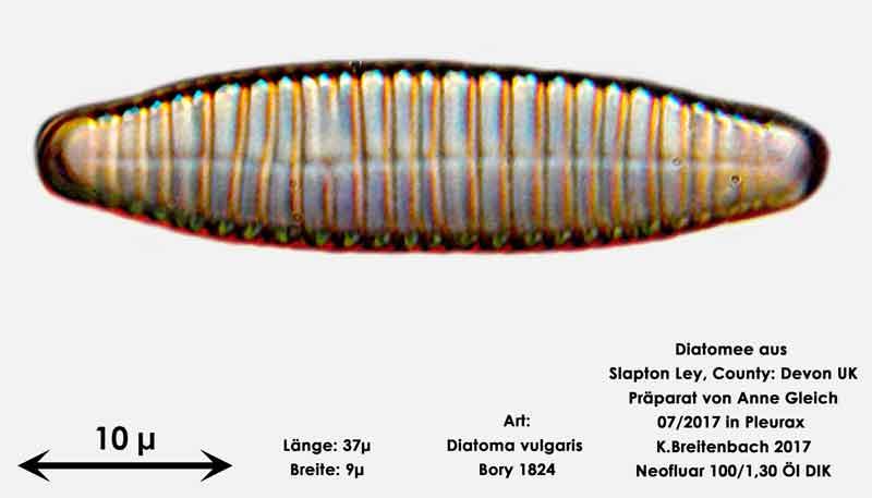 Bild 14 Diatomeen aus Slapton Ley, Devon UK; Art: Diatoma vulgaris Bory 1824