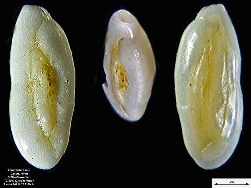 Bild 10 Foraminiferen aus Sand von Punta Sottile. Gattung: Triloculina sp.