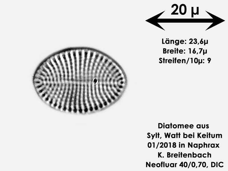 Bild 25 Diatomee aus Sylt/Keitum Watt, Art: Cocconeis scutellum Ehrenberg 1838