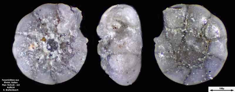 Bild 7 Foraminifere aus Strandsand aus Rimini; Gattung: Ammonia sp.