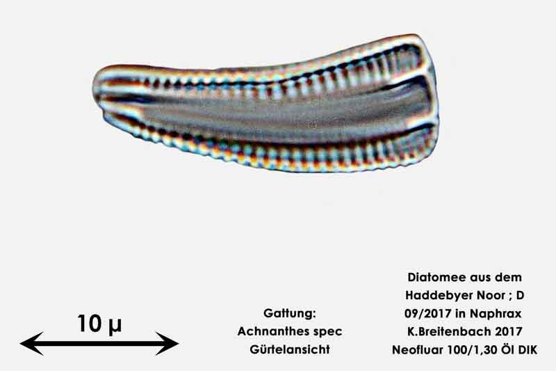 Bild 3 Diatomee aus dem Haddebyer Noor in Schleswig Holstein; Gattung: Achnanthes spec.