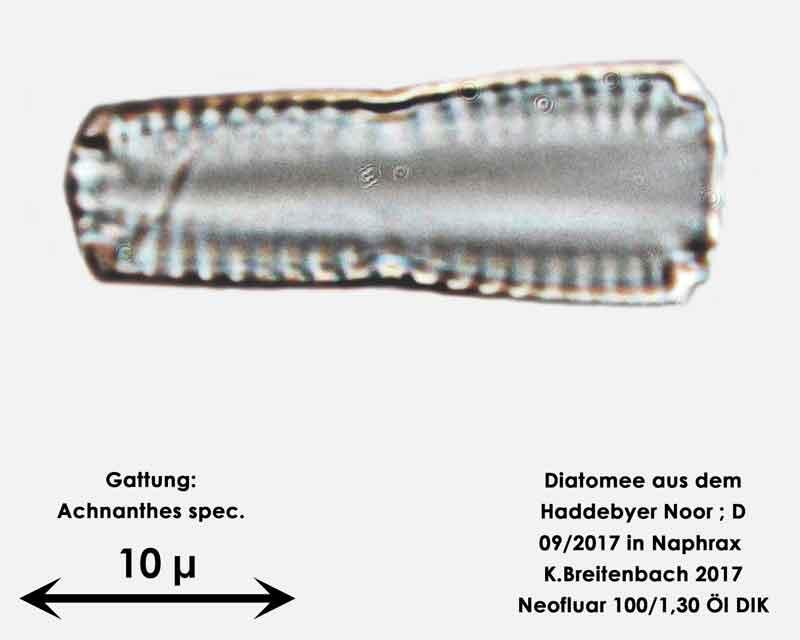 Bild 2 Diatomee aus dem Haddebyer Noor in Schleswig Holstein; Gattung: Achnanthes spec.