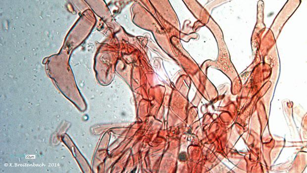 Bild 14 Semmelstoppelpilz (Hydnum repandum) Hyphensystem Huthaut
