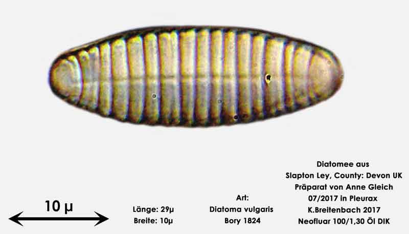 Bild 13 Diatomeen aus Slapton Ley, Devon UK; Art: Diatoma vulgaris Bory 1824