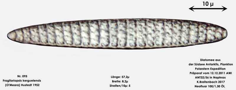 Bild 14 Art: Fragilariopsis kerguelensis (O'Meara) Hustedt 1952