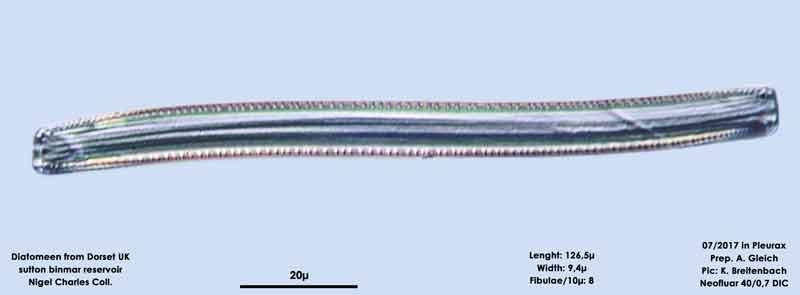 Bild 23 Diatomeen aus Dorset UK, Süßwasser. Art: Nitzschia sigmoidea (Nitzsch) W.Smith 1853