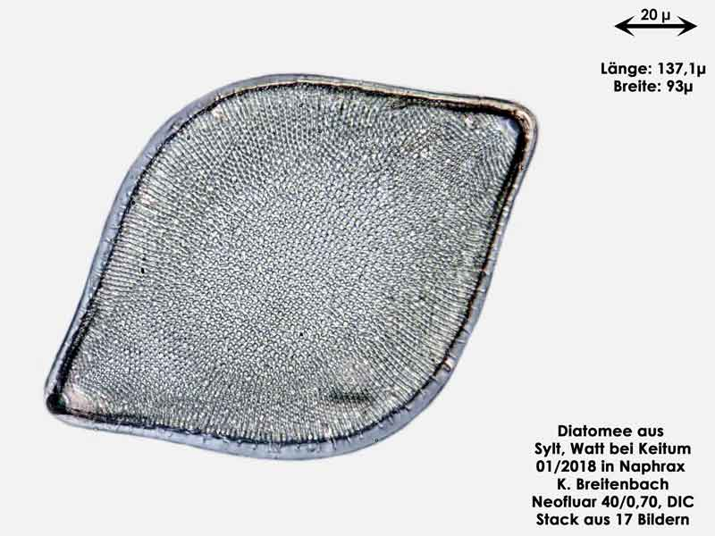 Bild 17 Diatomee aus Sylt/Keitum Watt, Art: Biddulphia rhombus (Ehrenberg) Smith 1854