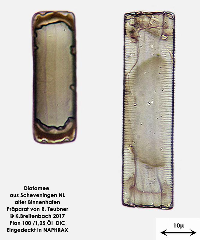 Bild 13 Diatomeen aus Scheveningen NL, Art diverse nicht bestimmt