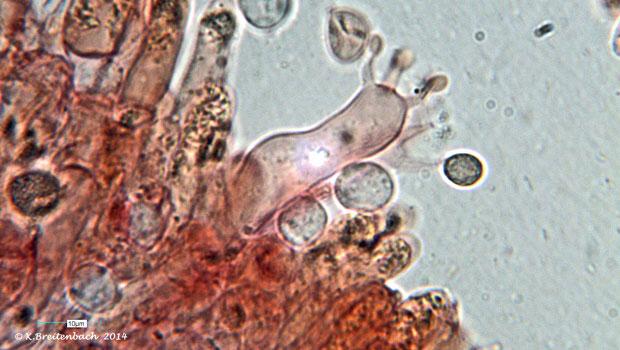 Bild 12 Semmelstoppelpilz (Hydnum repandum) Basidie mit Spore