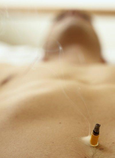 Moxibustion abdominale avec moxas autocollant.