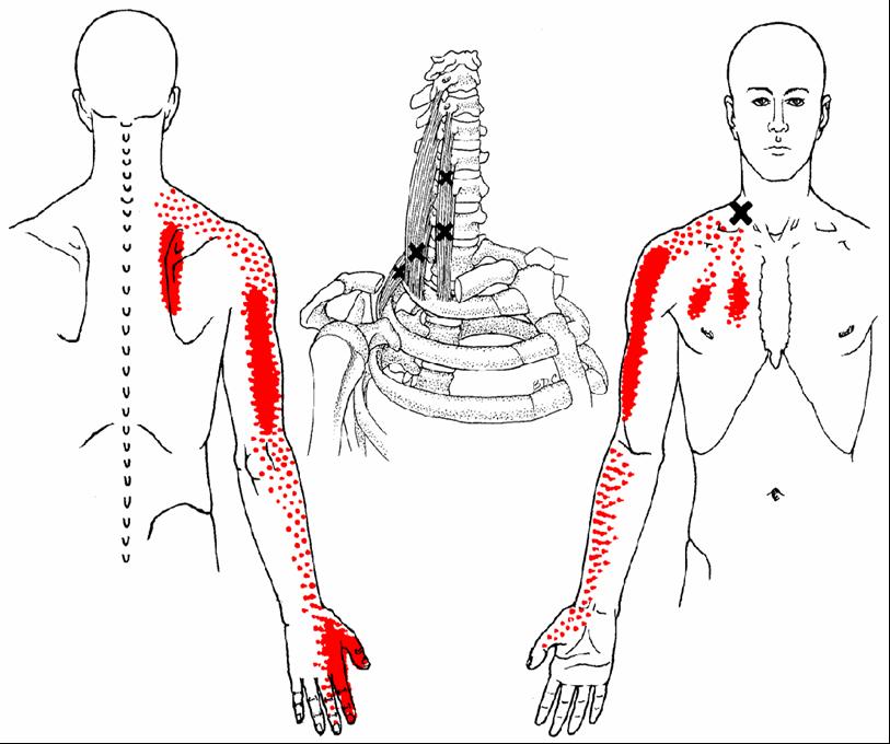 Musculi scaleni - Diese Muskeln können massive Schmerzen in der Schulter, im gesamten Arm bishin Sensibilitätsstörungen in der Hand verursachen. Gleichzeitig können sie hartnäckige Schmerzen zwischen den Schulterblättern, in der Brust sowie erhebliche Bew