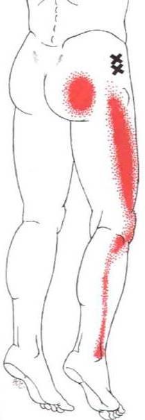 M. glutaeus minimus - Schmerzende Ausstrahlungen ins Bein - ein Pseudo-Ischias Schmerz.
