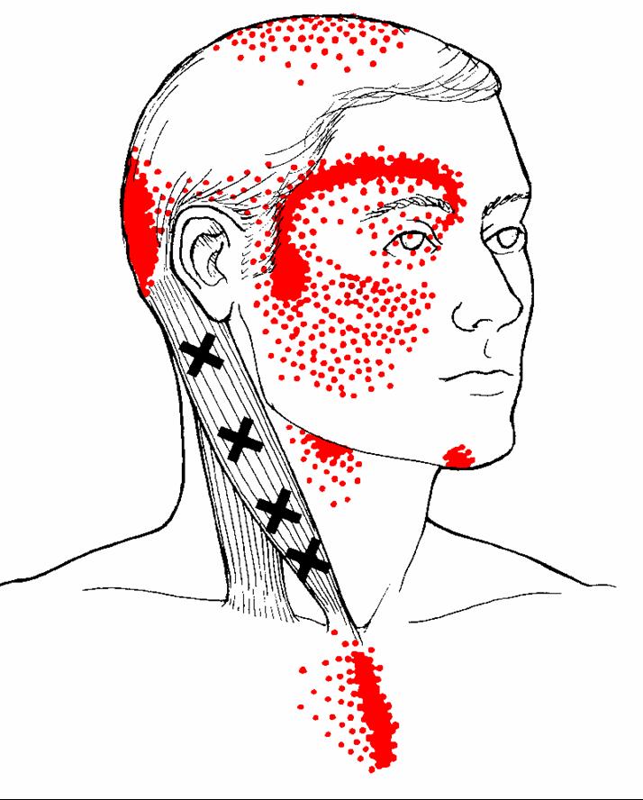 M. sternocleidomastoideus - Dieser Muskel ist bekannt dafür, dass er starke, migränoide Kopfschmerzen im Bereich der Stirn und um das Auge verursachen kann. Er ist ebenfalls häufig der Auslöser von starkem Schwindel, Sehstörungen, Nasennebenhöhlenschmerze