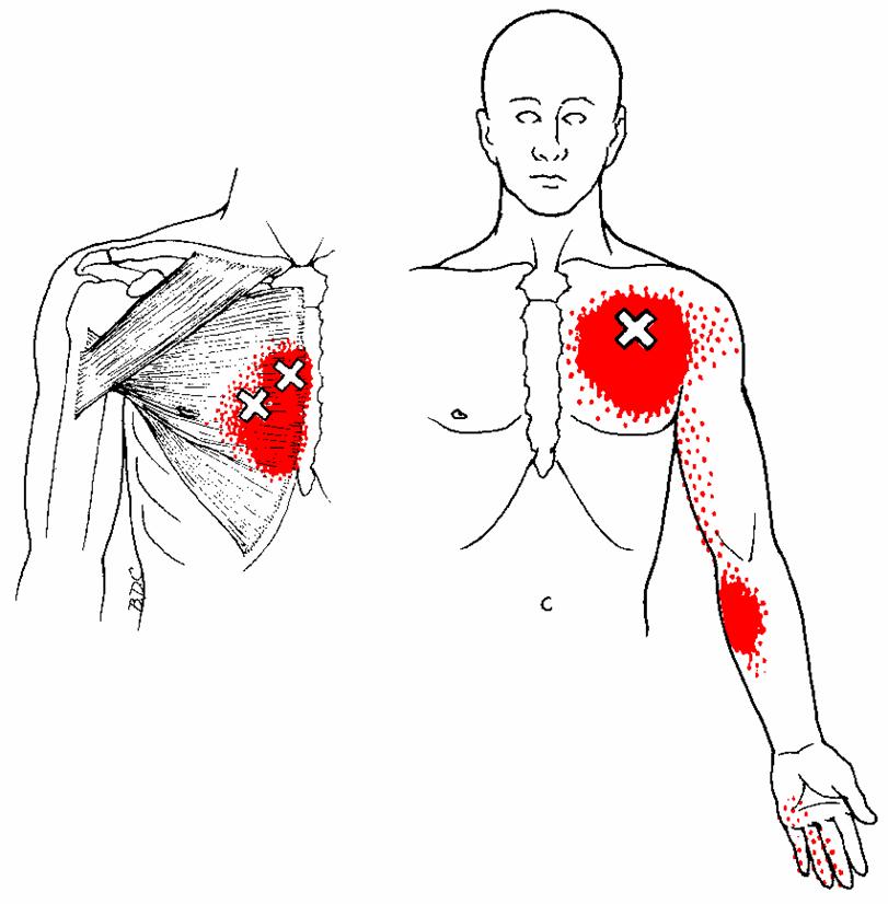 """M. pectoralis major - Der große Brustmuskel kann bei Patienten  herzinfarktähnliche Schmerzen verursachen.  Er ist weiters ein Verursacher des """"Golfer - Ellenbogens""""."""