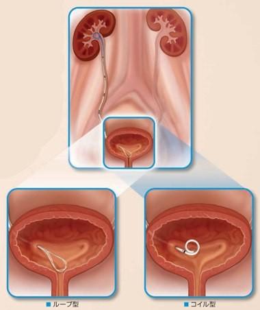 尿管ステント留置術
