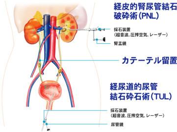 尿路結石 治療法
