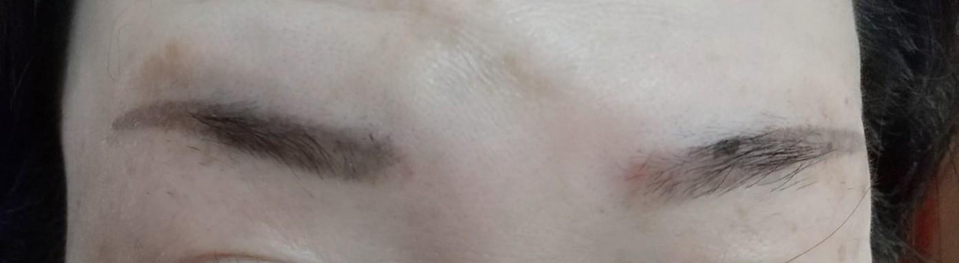 眉毛タトゥー 施術後1週間経過。向かって右眉の上の方にまだカサブタがくっついてます。(2021年)