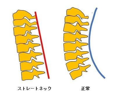 ストレートネックと頚椎の正常なアライメント