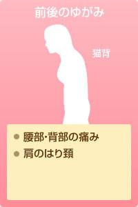 前後のゆがみ…腰部・背部の痛み、肩のはり頚