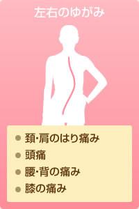 左右のゆがみ…頚・肩のはり痛み、頭痛、腰・背の痛み、膝の痛み