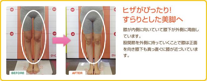 ヒザがぴったり すらりとした美脚へ 股関節を外側に持っていくことで膝は正面を向き、膝下も真っ直ぐに膝が近づいています。