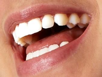 Schönes Lachen,  Schöne Zähne
