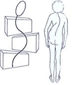 Erscheinungsbild einer 3-Bogen Skoliose, Patricia Kressig-Schori, Praxis für Energetische Körpertherapien, Zürich