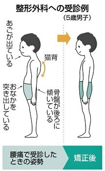 5歳で腰痛 (中日新聞参照)
